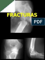 123770835-Tema-14-Fracturas