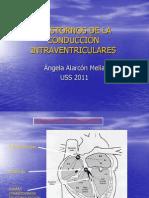 Trastornos de la conduccion intraventricular (1).ppt