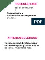 Arterioesclerosis -Aneurismas Act
