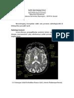 Neuroimaging head CT scan