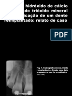 O uso de hidróxido de cálcio e agregado trióxido mineral na apicificação de um dente.pptx