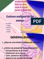 Lesiones Malignas de Las Mamas.
