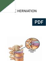 Neuro (Disk Herniation)