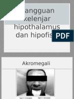akromegali ppt