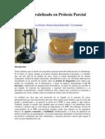 Diseño y paralelizado en Prótesis Parcial Removible