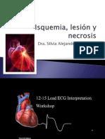 Isquemia PRESENTACION