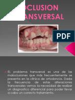 Oclusion Transversal