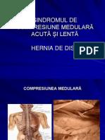 Compresiunea Medulara, Colegiu Bt