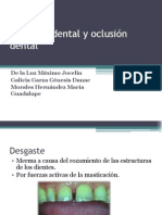 Desgaste dental y oclusión dental