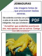 ACDENTES_QUEIMADURAS