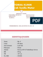 Tutorial Klinik Katarak