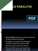 Presentation6.pptxILEUS PARALITIK