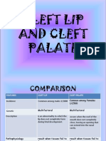 29088241 Cleft Lip and Cleft Palate