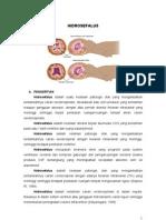 LP hidorsefalus-Rahmawatus S.doc