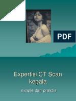 Expertisi CT Scan Kepala