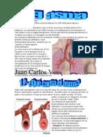 Asma y Enfermedad de Crohn