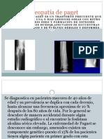 Osteopatía de paget