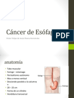 Cancer de Esofago