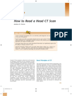How to read CT scan