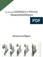 ATRESIA ESOFÁGICA Y FÍSTULA TRAQUEOESOFÁGICA