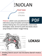 Patofisiologi Polip AZMI