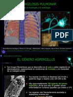 Aspergilosis Reducido