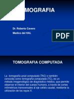 Tomografia Clase de Generalidades