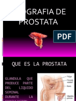 Prostata Ppt