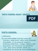 Rinitis Catarral Aguda y Sinusitis