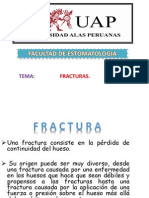 Fracuras