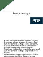 Ruptur esofagus