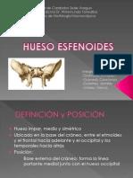Expo Neuroanatomia Esfenoides..... Imagenes.