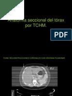4.3 Anatomia Seccional Del Torax Por TCHM.