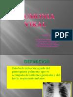 Neumonia Viral