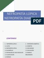 Nefropatia LD.pptx