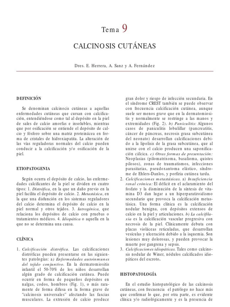qué es el calcinosis