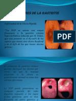 Complicaciones de La Gastritis Cronica