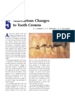 5 Non Carious Changes to Tooth Crown