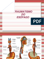 traumatismo do esôfago