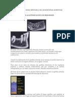Clasificación de las áreas edéntulas y las características anatómicas de ellas