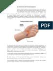 Fisiopatología del síndrome del Túnel Carpiano