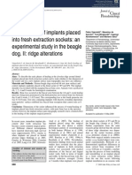Early Healing of Implants Placed Into Fresh Extraction Sockets- An Experimental Study in the Beagle Dog. II- Ridge Alterations