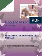 Bloquedo de Rodilla