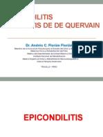 Epicondilitis y Tendinitis de d'Quervain