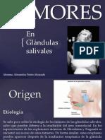 Tumores en la glándulas salivales