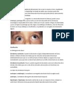 desviacion ocular.docx