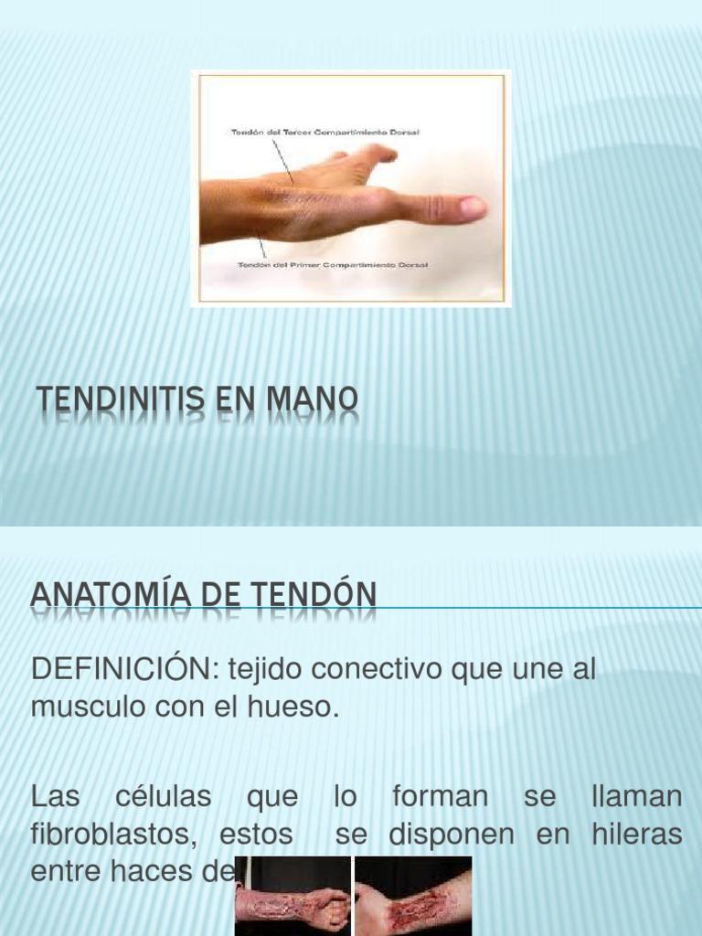 Tendinitis en Mano