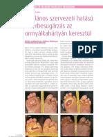 A Ltala Nos Szervezeti HaÁltalános szervezeti hatású lézerbesugárzás az orrnyálkahártyán keresztülta Su