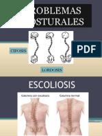 Escoliosis Clase Dos