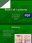 Basal Cell Carsinoma